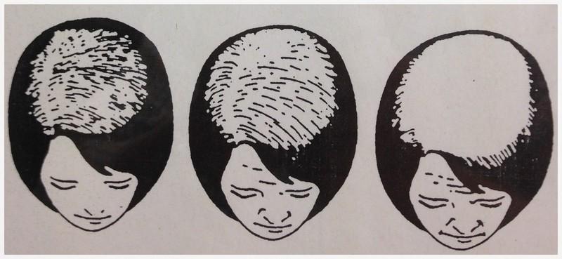 alopecia androgenica donna 3